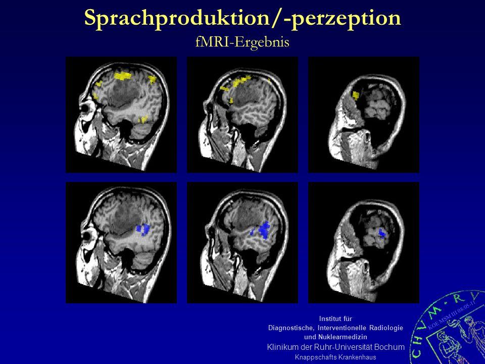 KOE MSM III 08/05-11 Institut für Diagnostische, Interventionelle Radiologie und Nuklearmedizin Klinikum der Ruhr-Universität Bochum Knappschafts Krankenhaus Sprachproduktion/-perzeption fMRI-Ergebnis