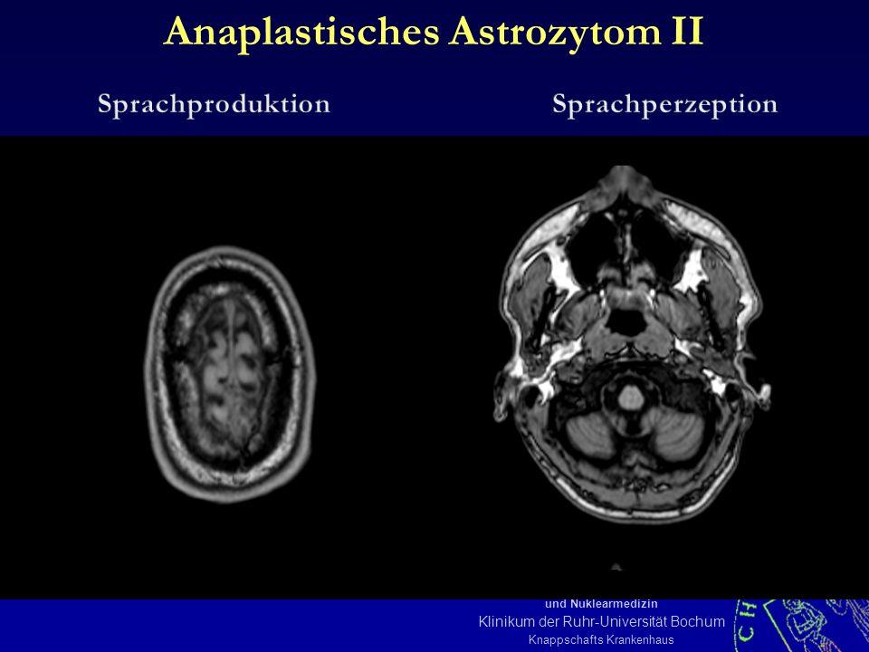 KOE MSM III 08/05-16 Institut für Diagnostische, Interventionelle Radiologie und Nuklearmedizin Klinikum der Ruhr-Universität Bochum Knappschafts Krankenhaus Anaplastisches Astrozytom II