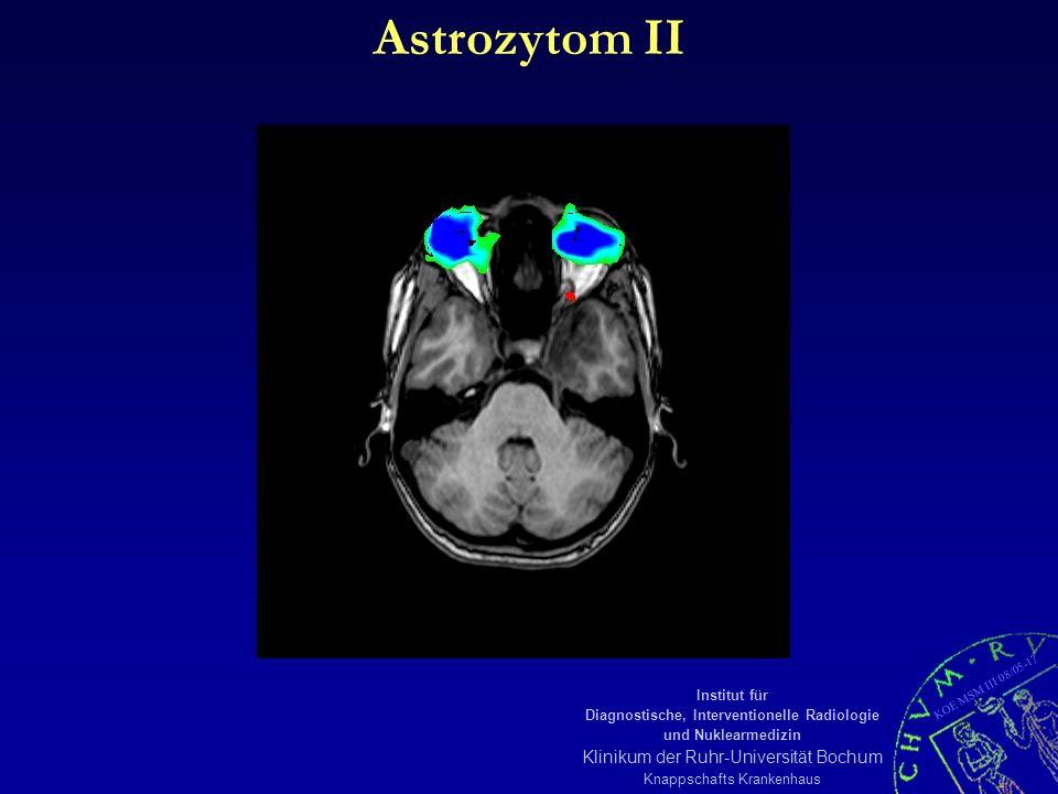 KOE MSM III 08/05-17 Institut für Diagnostische, Interventionelle Radiologie und Nuklearmedizin Klinikum der Ruhr-Universität Bochum Knappschafts Krankenhaus Astrozytom II