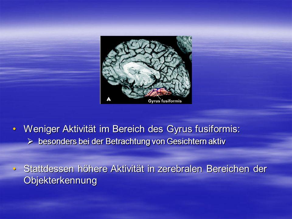 Weniger Aktivität im Bereich des Gyrus fusiformis:Weniger Aktivität im Bereich des Gyrus fusiformis: besonders bei der Betrachtung von Gesichtern akti