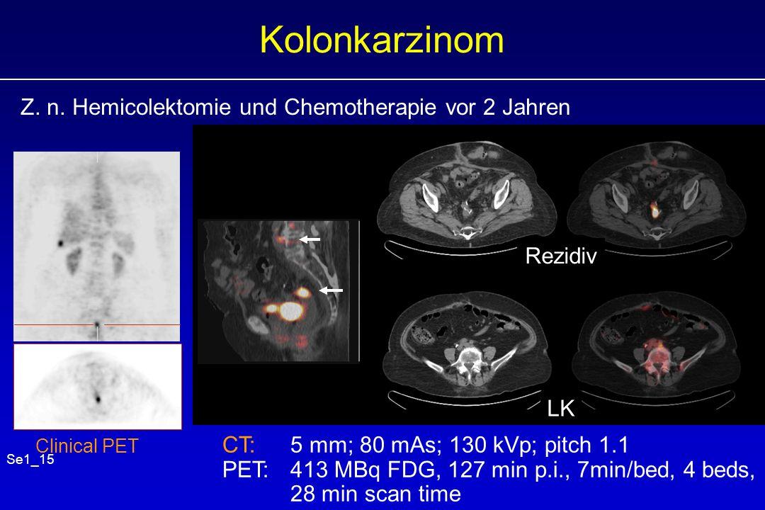 Kolonkarzinom Z. n. Hemicolektomie und Chemotherapie vor 2 Jahren CT: 5 mm; 80 mAs; 130 kVp; pitch 1.1 PET: 413 MBq FDG, 127 min p.i., 7min/bed, 4 bed