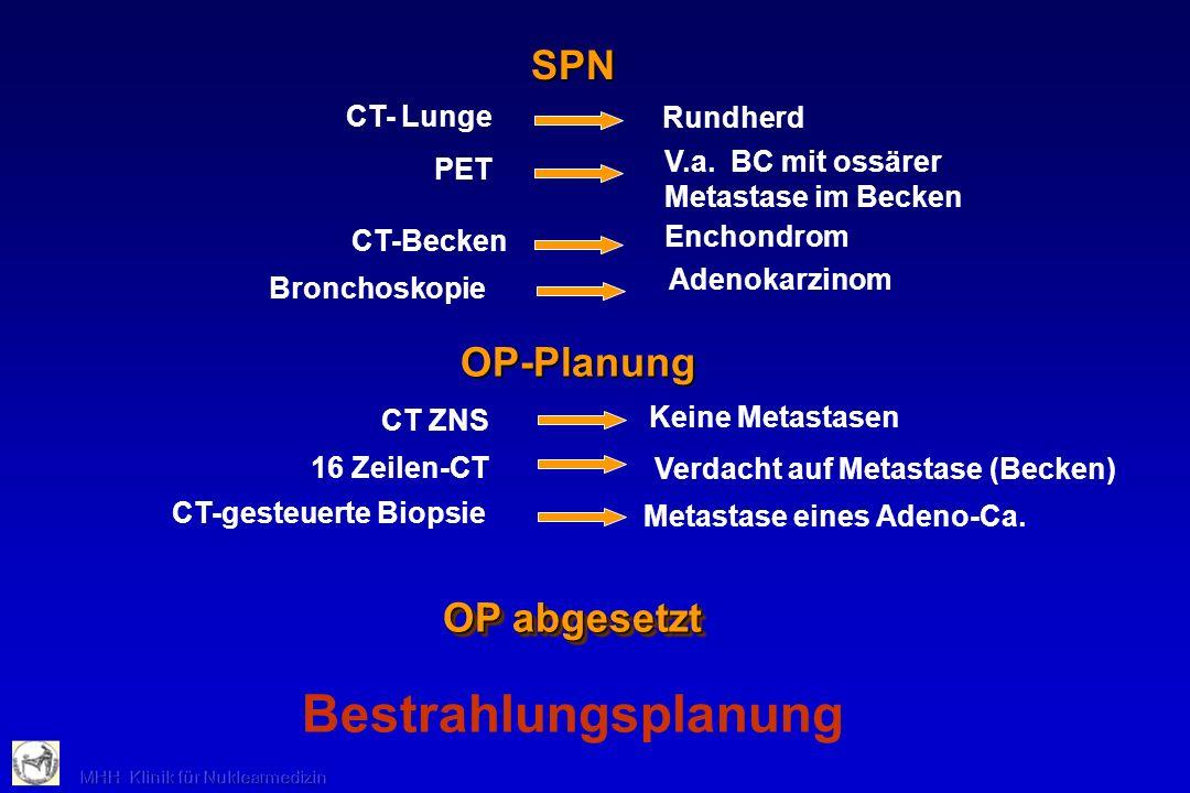 SPN CT- Lunge PET CT-Becken Enchondrom Rundherd Bronchoskopie Adenokarzinom V.a. BC mit ossärer Metastase im Becken OP-Planung Keine Metastasen CT ZNS