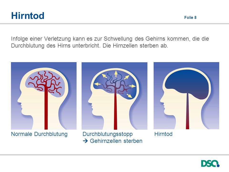 Hirntod Folie 8 Infolge einer Verletzung kann es zur Schwellung des Gehirns kommen, die die Durchblutung des Hirns unterbricht. Die Hirnzellen sterben
