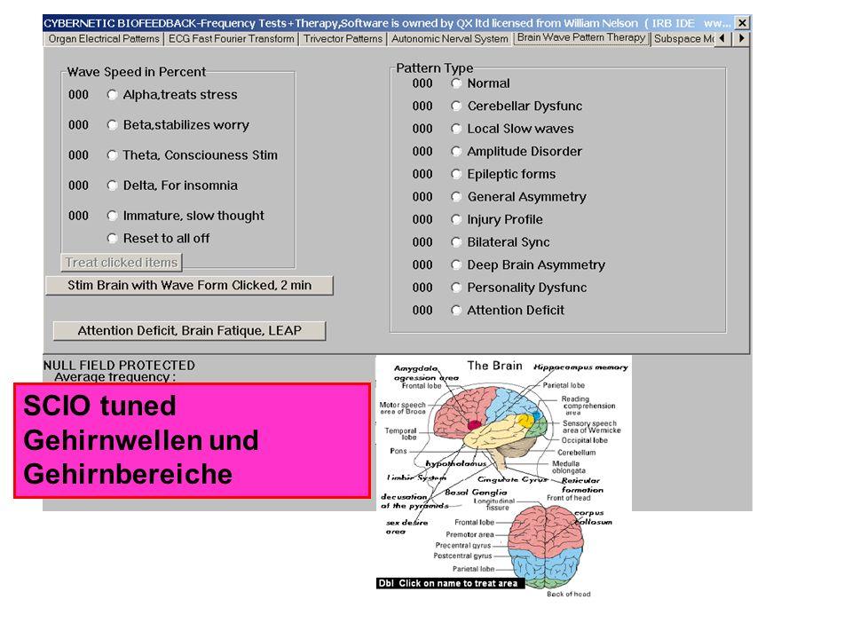 SCIO tuned Gehirnwellen und Gehirnbereiche