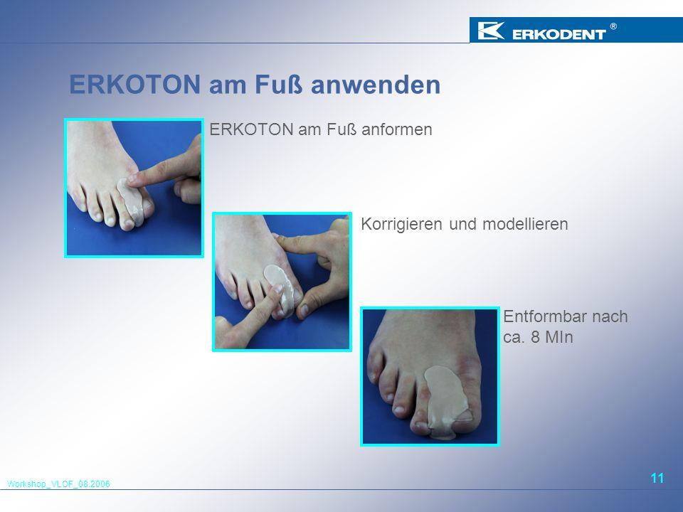 Workshop_VLOF_08.2006 11 ERKOTON am Fuß anwenden ERKOTON am Fuß anformen Korrigieren und modellieren Entformbar nach ca. 8 MIn