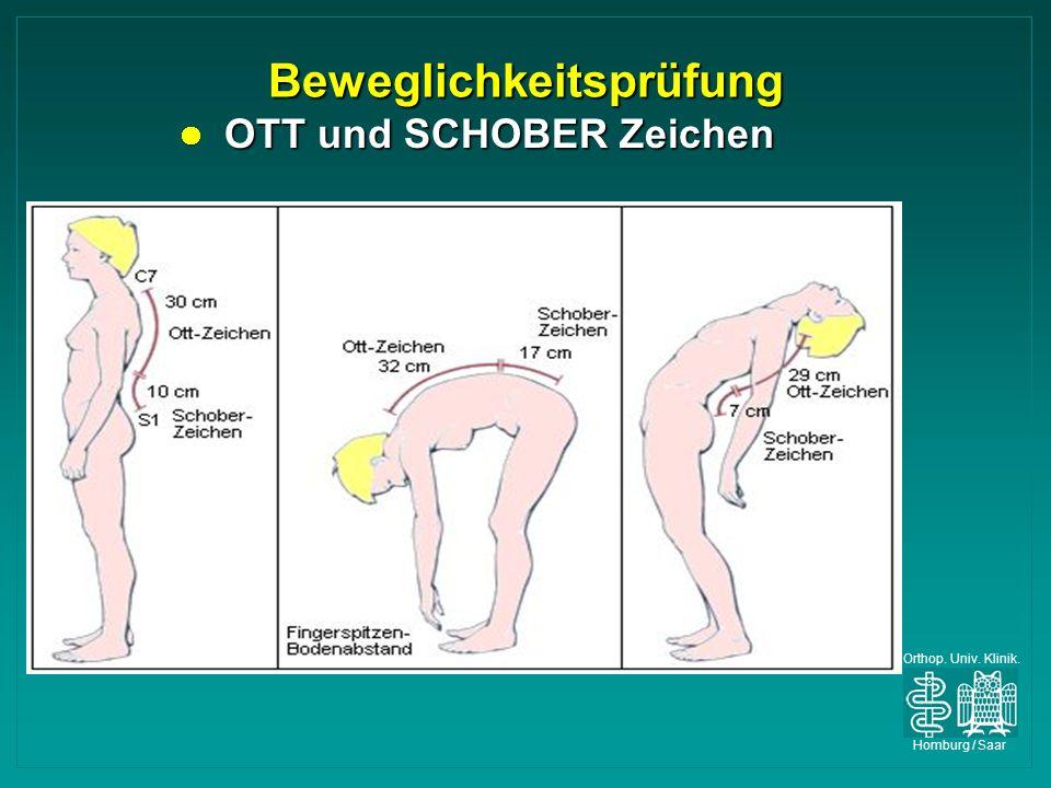 Orthop. Univ. Klinik. Homburg / Saar Beweglichkeitsprüfung OTT und SCHOBER Zeichen OTT und SCHOBER Zeichen