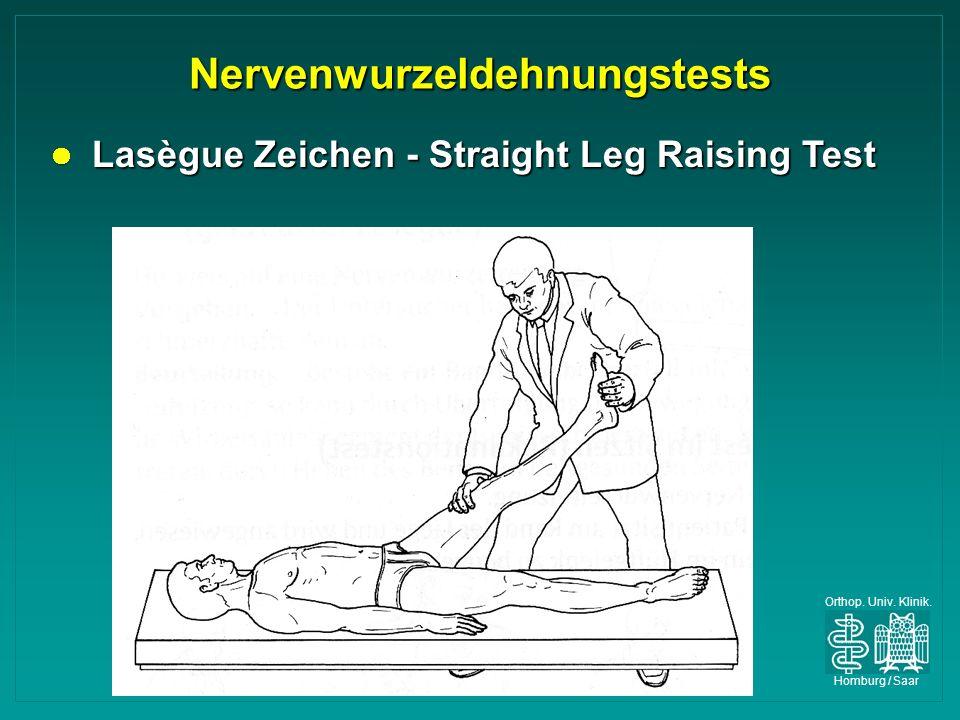 Orthop. Univ. Klinik. Homburg / Saar Nervenwurzeldehnungstests Lasègue Zeichen - Straight Leg Raising Test Lasègue Zeichen - Straight Leg Raising Test