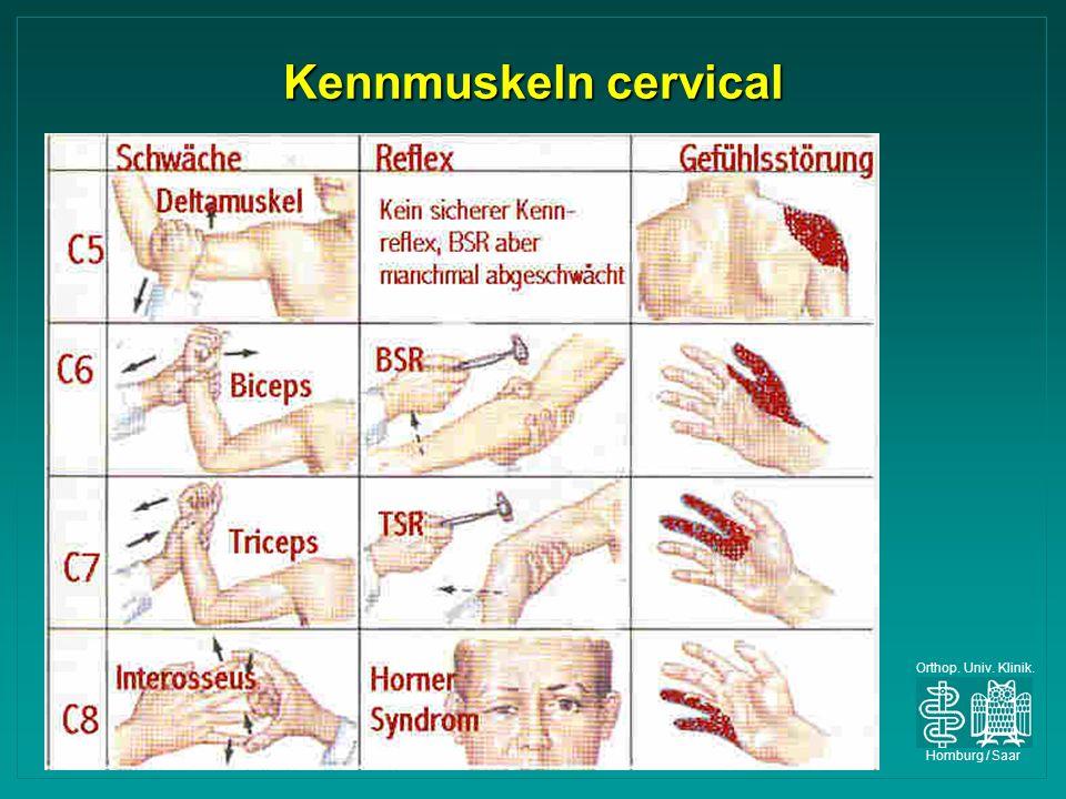 Orthop. Univ. Klinik. Homburg / Saar Kennmuskeln cervical