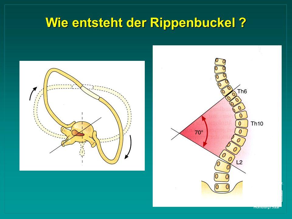Orthop. Univ. Klinik. Homburg / Saar Wie entsteht der Rippenbuckel ?