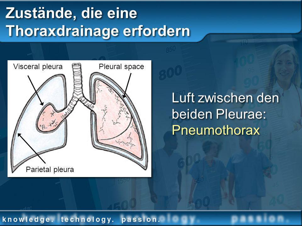 Zustände, die eine Thoraxdrainage erfordern Luft zwischen den beiden Pleurae: Pneumothorax Parietal pleura Visceral pleuraPleural space