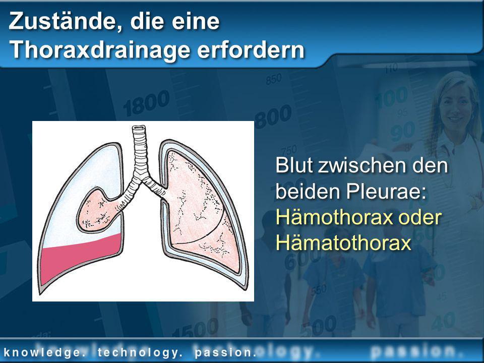 Zustände, die eine Thoraxdrainage erfordern Blut zwischen den beiden Pleurae: Hämothorax oder Hämatothorax