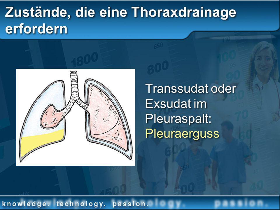 Transsudat oder Exsudat im Pleuraspalt: Pleuraerguss Zustände, die eine Thoraxdrainage erfordern