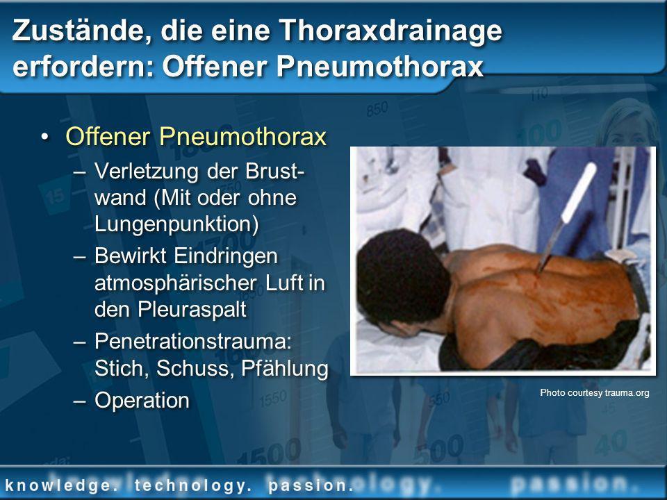 Zustände, die eine Thoraxdrainage erfordern: Offener Pneumothorax Offener Pneumothorax –Verletzung der Brust- wand (Mit oder ohne Lungenpunktion) –Bew