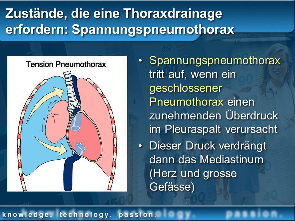 Zustände, die eine Thoraxdrainage erfordern: Spannungspneumothorax Spannungspneumothorax tritt auf, wenn ein geschlossener Pneumothorax einen zunehmen
