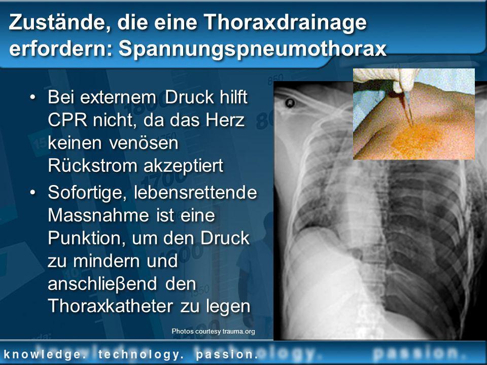 Zustände, die eine Thoraxdrainage erfordern: Spannungspneumothorax Bei externem Druck hilft CPR nicht, da das Herz keinen venösen Rückstrom akzeptiert