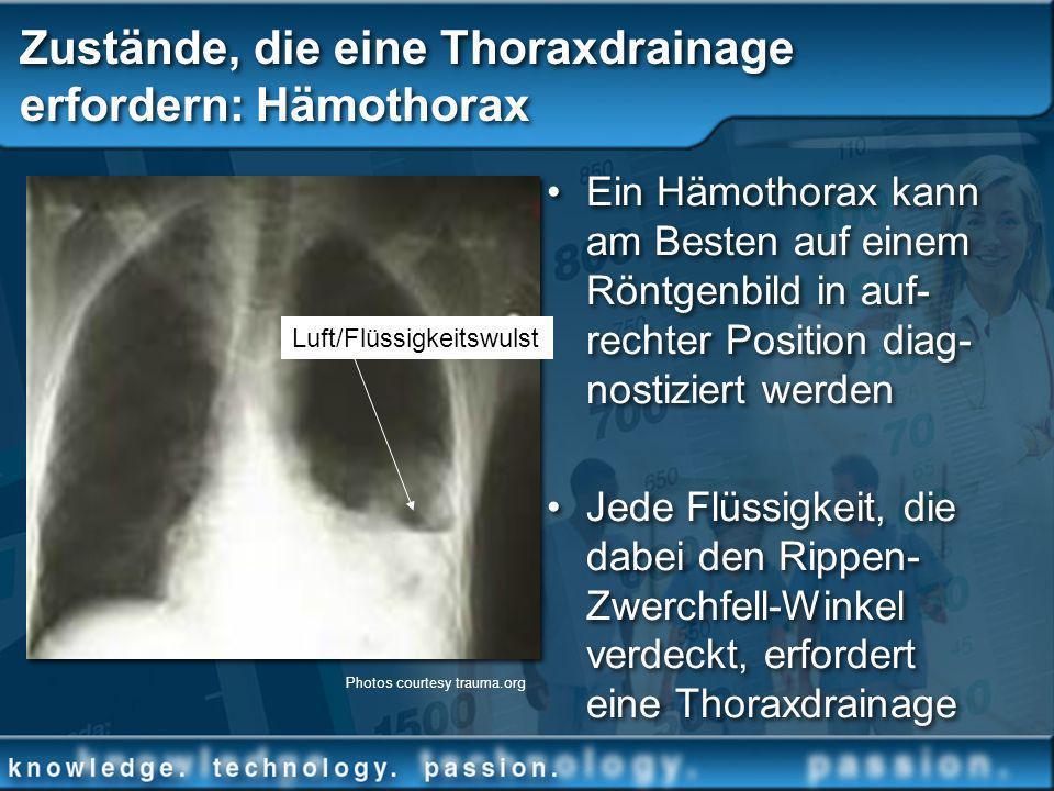 Zustände, die eine Thoraxdrainage erfordern: Hämothorax Ein Hämothorax kann am Besten auf einem Röntgenbild in auf- rechter Position diag- nostiziert