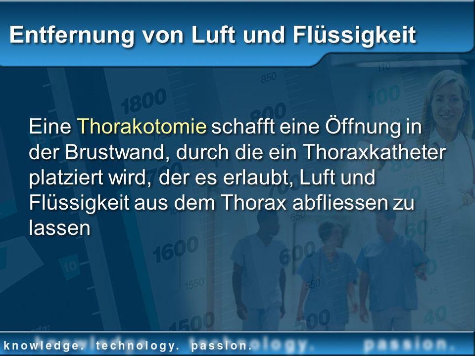 Entfernung von Luft und Flüssigkeit Eine Thorakotomie schafft eine Öffnung in der Brustwand, durch die ein Thoraxkatheter platziert wird, der es erlau