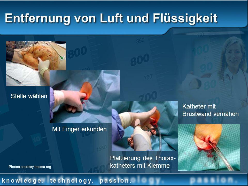 Entfernung von Luft und Flüssigkeit Stelle wählen Mit Finger erkunden Platzierung des Thorax- katheters mit Klemme Katheter mit Brustwand vernähen Pho
