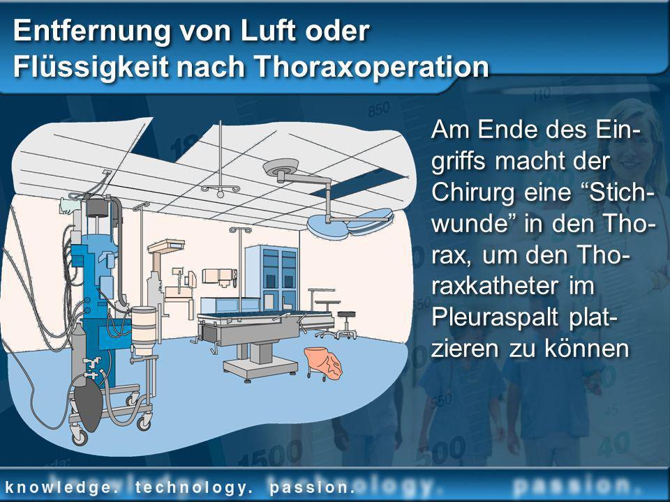 Entfernung von Luft oder Flüssigkeit nach Thoraxoperation Am Ende des Ein- griffs macht der Chirurg eine Stich- wunde in den Tho- rax, um den Tho- rax