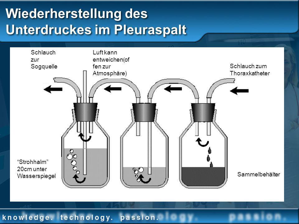 Wiederherstellung des Unterdruckes im Pleuraspalt 2cm fluid water sealCollection bottleSuction control Schlauch zum Thoraxkatheter Sammelbehälter Luft