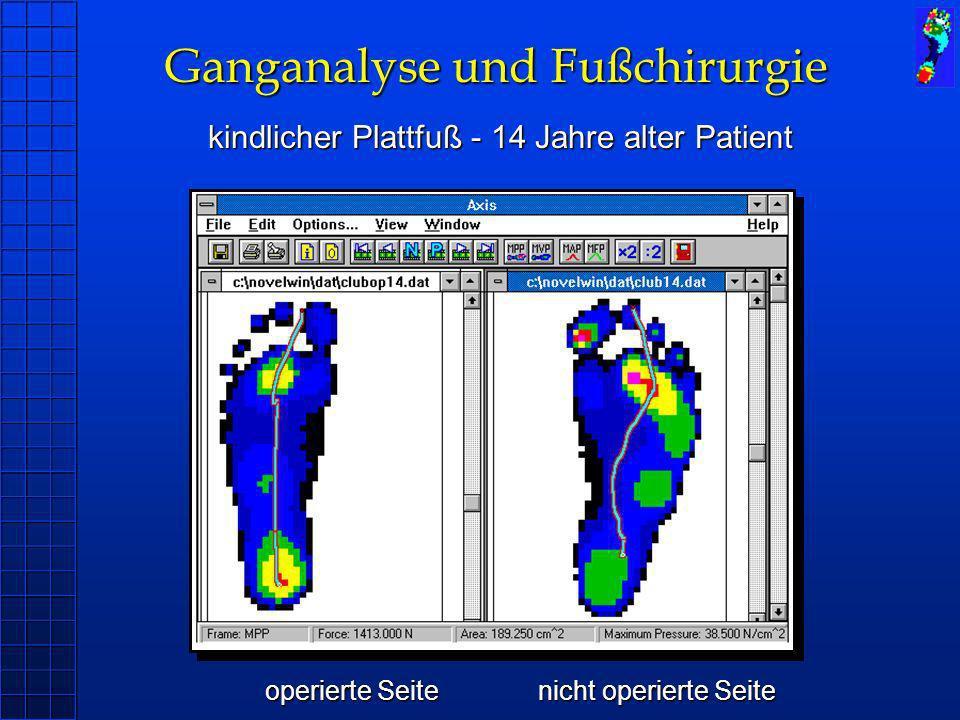 Ganganalyse und Fußchirurgie kindlicher Plattfuß - 14 Jahre alter Patient operierte Seitenicht operierte Seite operierte Seitenicht operierte Seite