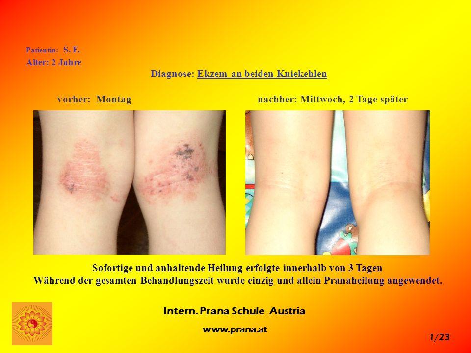1/23 Intern. Prana Schule Austria www.prana.at Patientin: S. F. Alter: 2 Jahre Diagnose: Ekzem an beiden Kniekehlen vorher: Montag nachher: Mittwoch,