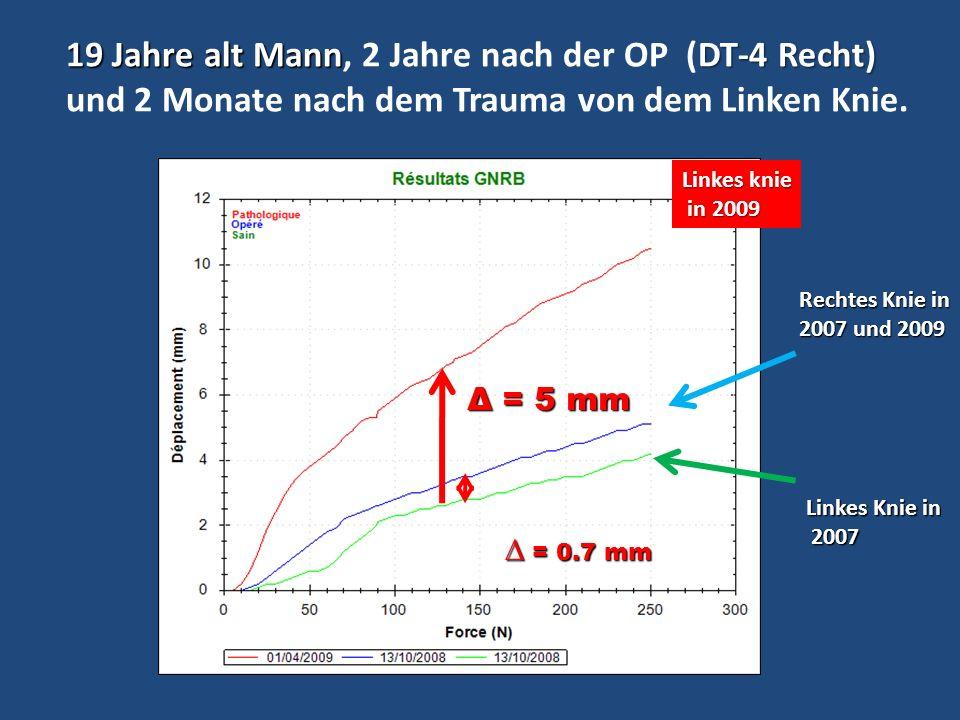 19 Jahre alt MannDT-4 Recht) 19 Jahre alt Mann, 2 Jahre nach der OP (DT-4 Recht) und 2 Monate nach dem Trauma von dem Linken Knie. Linkes Knie in 2007