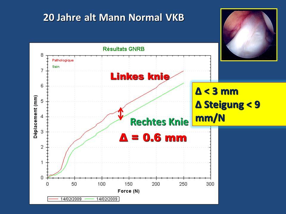 20 Jahre alt Mann, komplette VKB-Ruptur 20 Jahre alt Mann, komplette VKB-Ruptur Δ = 10 mm Gesundes Pathologisches Pathologisches Pression (N) Déplacement (mm) 6 mm Δ 3 mm Steigung > 9 mm/N Steigung > 9 mm/N