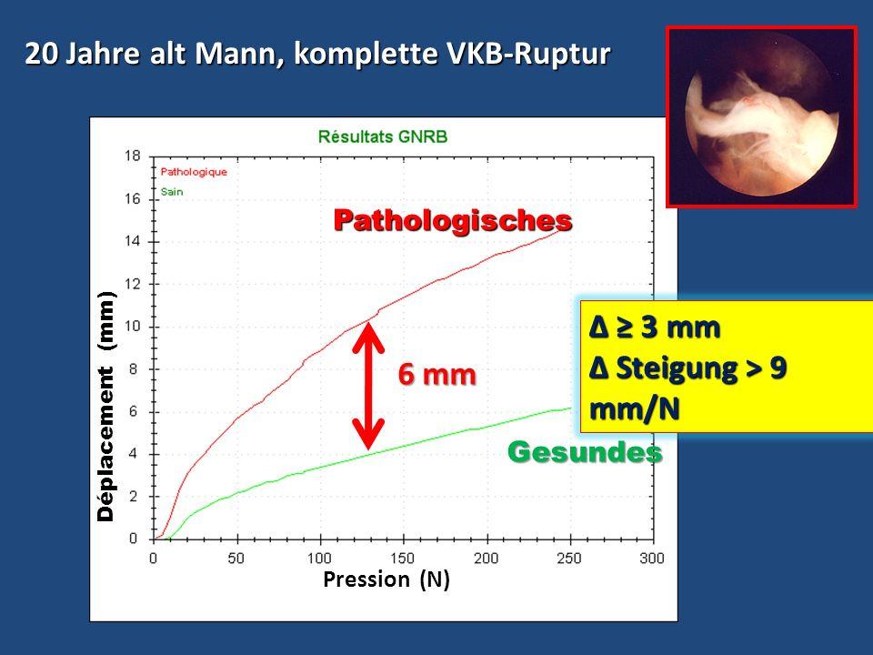 20 Jahre alt Mann, komplette VKB-Ruptur 20 Jahre alt Mann, komplette VKB-Ruptur Δ = 10 mm Gesundes Pathologisches Pathologisches Pression (N) Déplacem