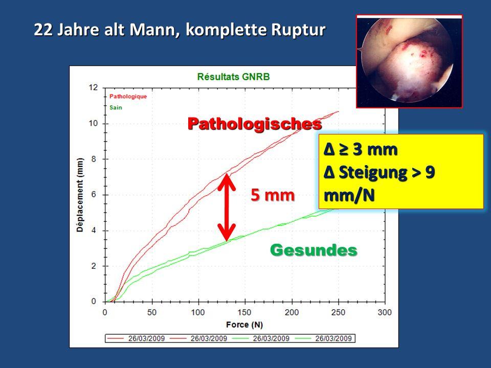 22 Jahre alt Mann, komplette Ruptur 22 Jahre alt Mann, komplette Ruptur 5 mm Pathologisches Pathologisches Gesundes Δ 3 mm Steigung > 9 mm/N Steigung