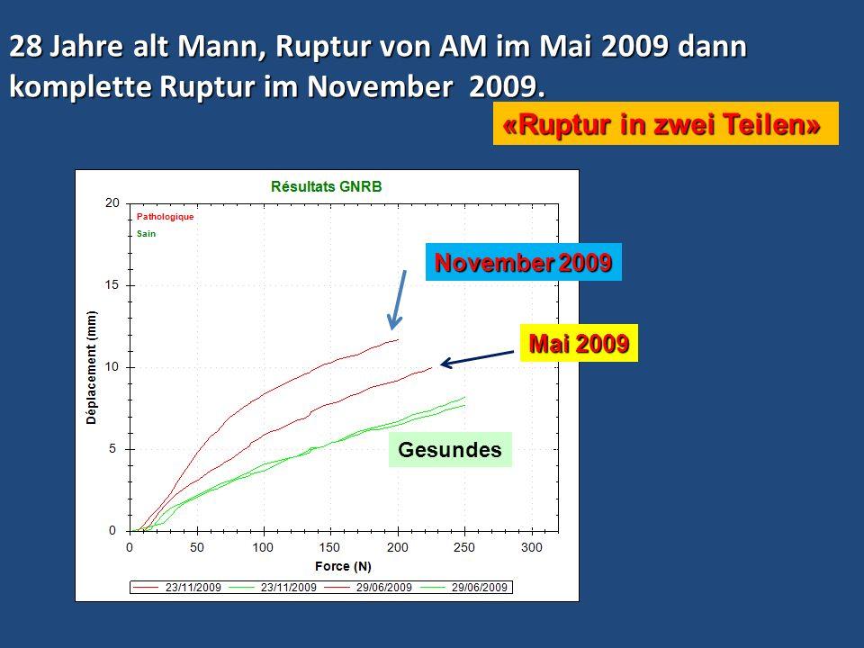 28 Jahre alt Mann, Ruptur von AM im Mai 2009 dann komplette Ruptur im November 2009. Mai 2009 November 2009 «Ruptur in zwei Teilen» Gesundes