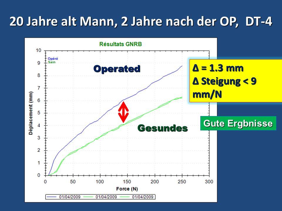 20 Jahre alt Mann, 2 Jahre nach der OP, DT-4 Gesundes Operated Δ = 1.3 mm Steigung < 9 mm/N Steigung < 9 mm/N Gute Ergbnisse