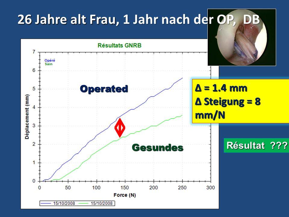 20 Jahre alt Frau, 3 Jahre nach OP, DT-4 Δ = 1 mm à 134 N Steigung = 13 mm/N Steigung = 13 mm/N Falche gut Ergebnisse weil die Steigung der Kurven>10mm/N ist Operated Knie Gesundes knie