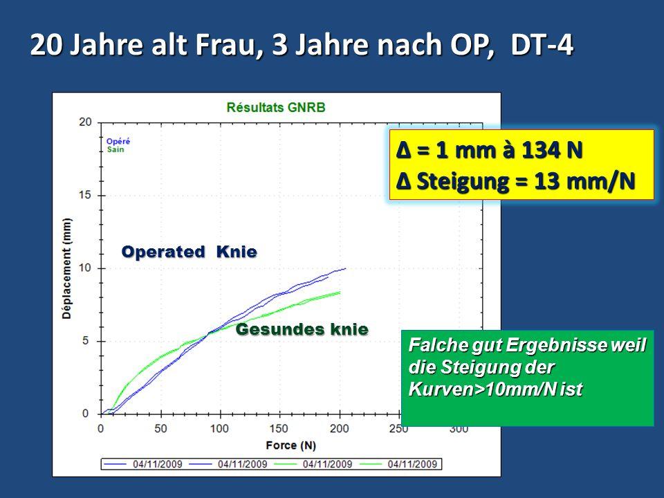 20 Jahre alt Frau, 3 Jahre nach OP, DT-4 Δ = 1 mm à 134 N Steigung = 13 mm/N Steigung = 13 mm/N Falche gut Ergebnisse weil die Steigung der Kurven>10m