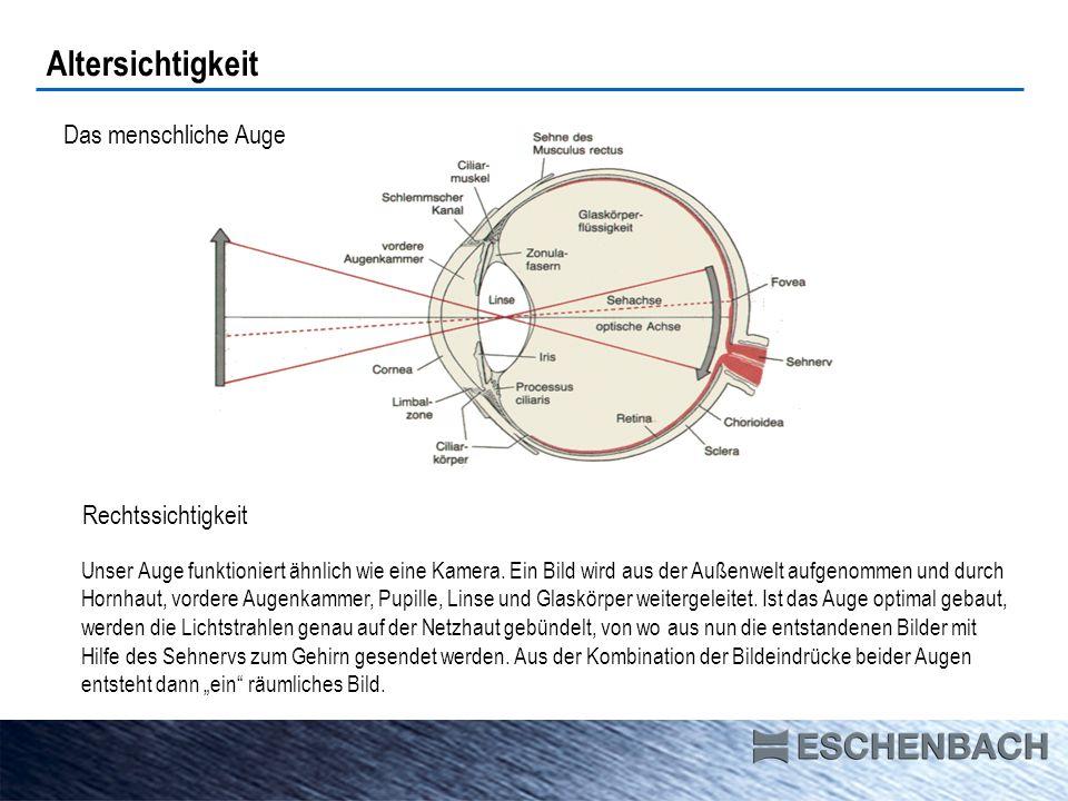 Altersichtigkeit (Presbyopie) Nachlassen der Akkommodationsfähigkeit Der Autofokus im Auge läßt nach Lebensalter bis 104555-6080 Akkommodationsfähigkeit 20 Dpt2 Dpt1 Dptmax.