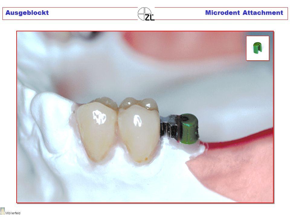 Einbettmassemodell Microdent Attachment Möllerfeld IS blasenfrei