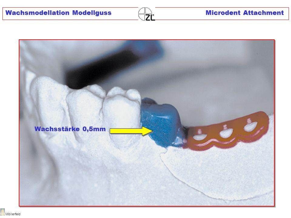 Wachsmodellation Modellguss Microdent Attachment Möllerfeld Wachsstärke 0,5mm