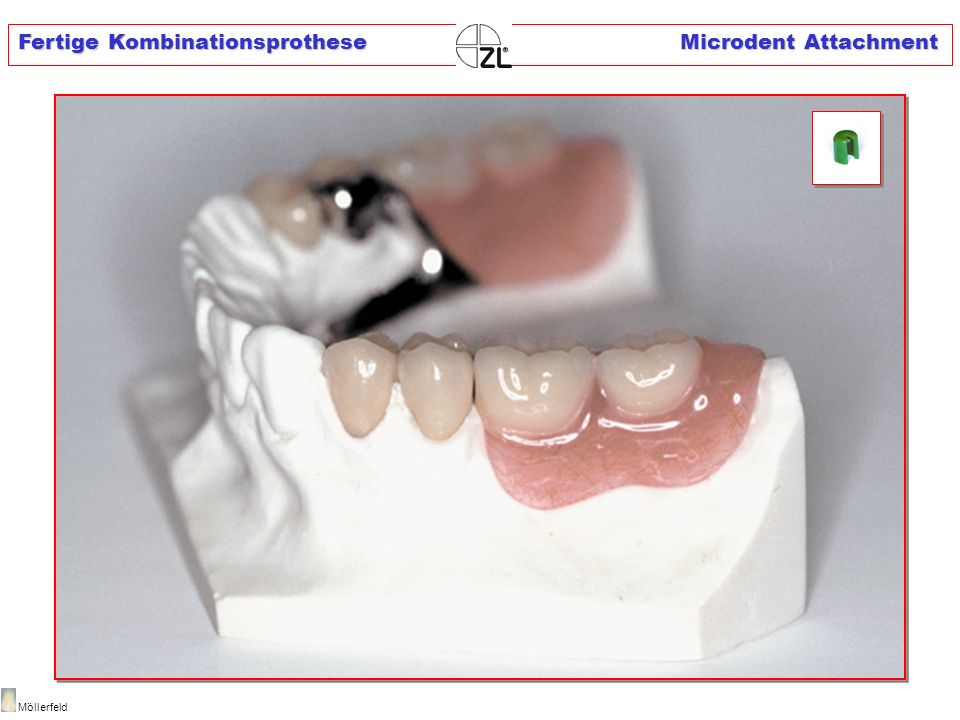 Fertige Kombinationsprothese Microdent Attachment Möllerfeld