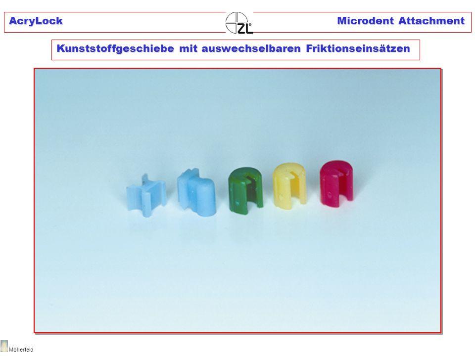 AcryLock Microdent Attachment Möllerfeld Kunststoffgeschiebe mit auswechselbaren Friktionseinsätzen