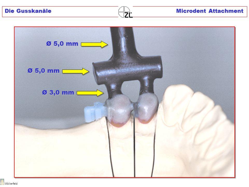 Die Gusskanäle Microdent Attachment Möllerfeld Ø 5,0 mm Ø 3,0 mm Ø 3,0 mm Ø 5,0 mm
