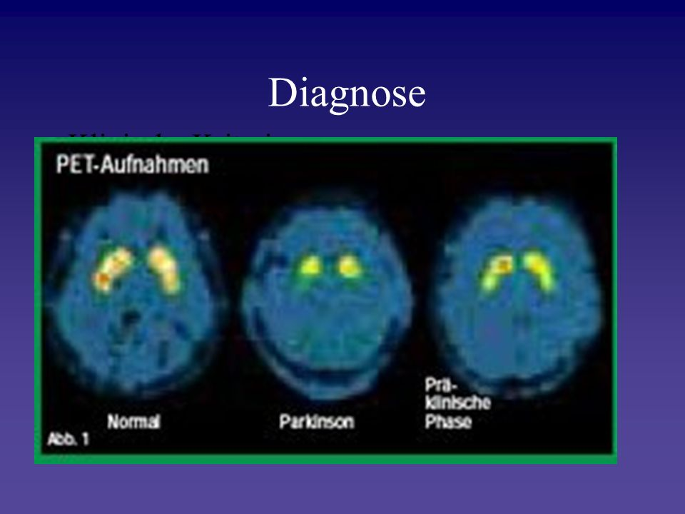 Diagnose Klinische Kriterien Physische Untersuchung und Erhebung der Patientengeschichte Fehldiagnoserate 10-25 %