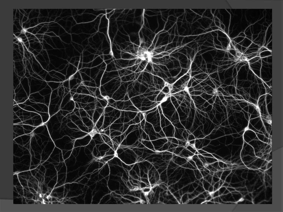 Zur Anatomie der Gehirns Das Nervensystem besteht aus mehr als hundert Millionen Nervenzellen (Neuronen), die mit anderen Neuronen mittels der sog.