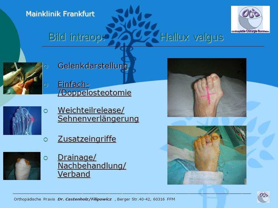 Bild intraop: Hallux valgus Bild intraop: Hallux valgus Gelenkdarstellung Gelenkdarstellung Einfach- /Doppelosteotomie Einfach- /Doppelosteotomie Weic