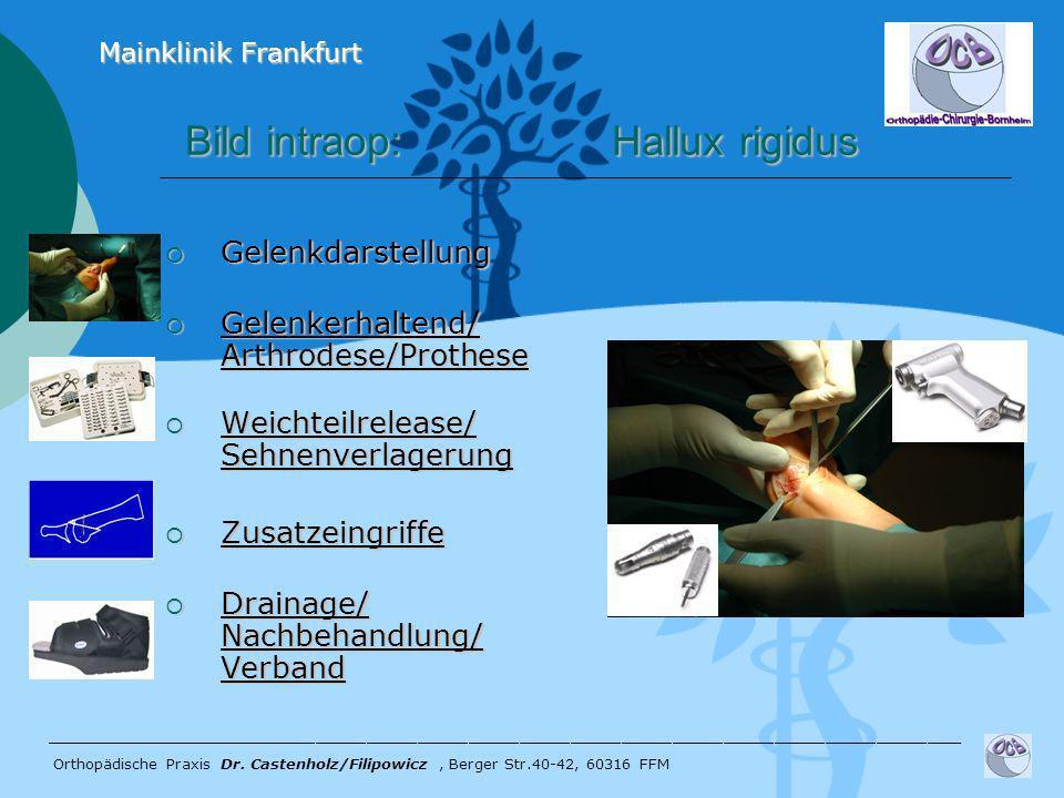 Bild intraop: Hallux rigidus Bild intraop: Hallux rigidus Gelenkdarstellung Gelenkdarstellung Gelenkerhaltend/ Arthrodese/Prothese Gelenkerhaltend/ Ar