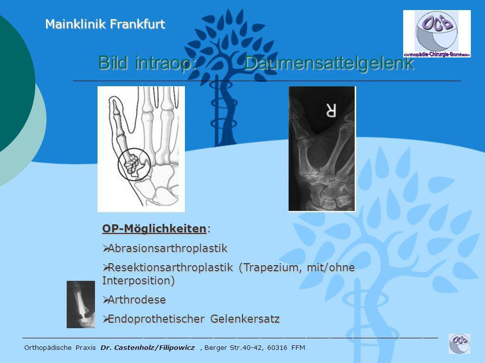 Bild intraop: Daumensattelgelenk Bild intraop: Daumensattelgelenk ______________________________________________________ Orthopädische Praxis Dr. Cast