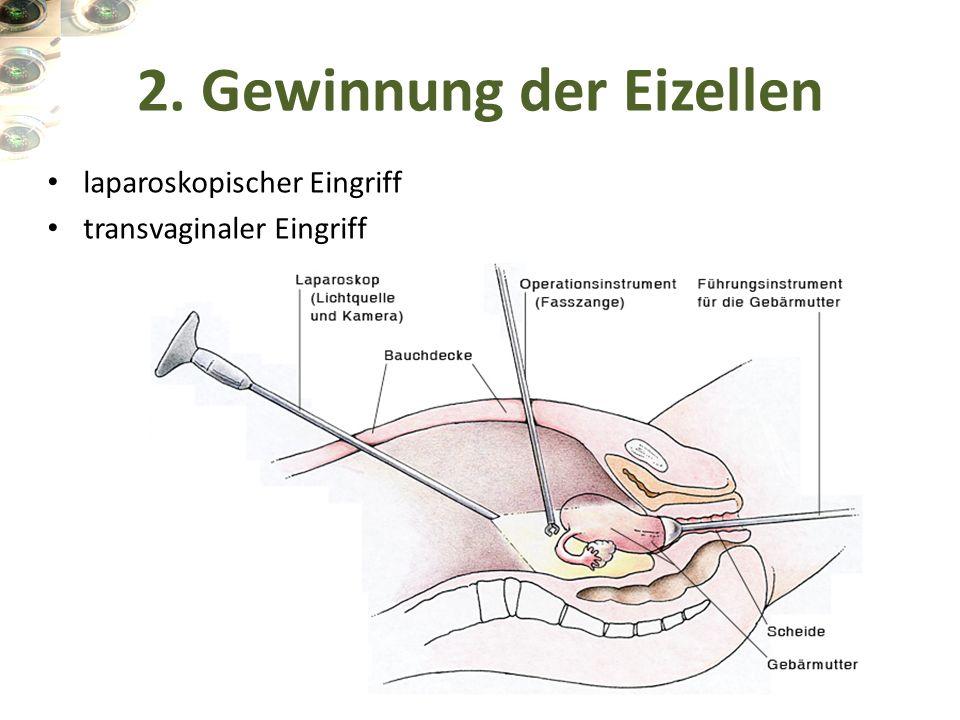 laparoskopischer Eingriff transvaginaler Eingriff 2. Gewinnung der Eizellen