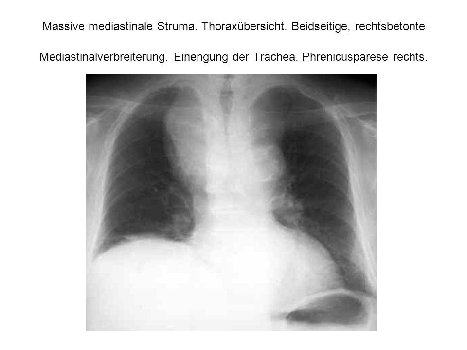 Massive mediastinale Struma. Thoraxübersicht. Beidseitige, rechtsbetonte Mediastinalverbreiterung. Einengung der Trachea. Phrenicusparese rechts.