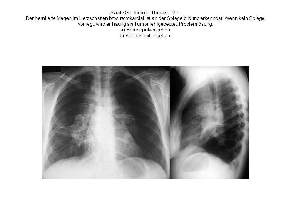 Axiale Gleithernie, Thorax in 2 E. Der herniierte Magen im Herzschatten bzw. retrokardial ist an der Spiegelbildung erkennbar. Wenn kein Spiegel vorli
