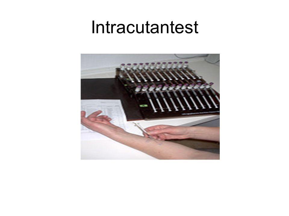 Intrakutantest Im Gegensatz zum Pricktest werden die Allergene beim Intrakutantest mit einer Spritze in die Oberhaut gespritzt.