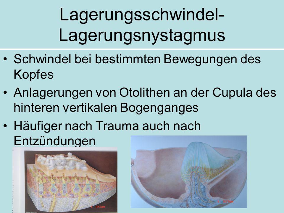 Lagerungsschwindel- Lagerungsnystagmus Schwindel bei bestimmten Bewegungen des Kopfes Anlagerungen von Otolithen an der Cupula des hinteren vertikalen